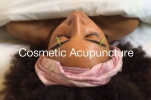 cosmetic-acupuncture-vancouver