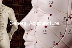 general-acupuncture-services-vancouver