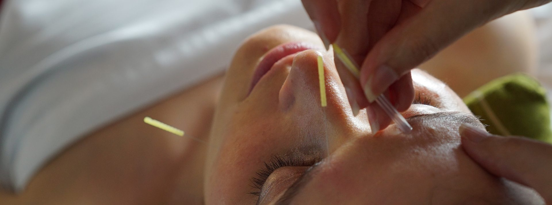 We are a unique Acupuncture clinic